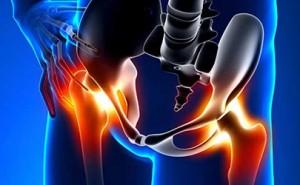 Cos'è quel dolore all'anca?