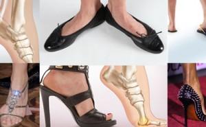 Le 10 scarpe peggiori per la salute del piede