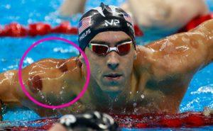 Phelps, Olimpiadi e Cupping: la cura che viene da lontano