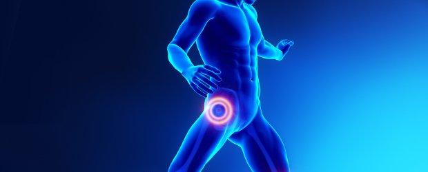 Artroscopia d'anca, perché non farla dopo i 40 anni