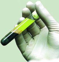 Il trattamento infiltrativo delle lesioni legamentose e delle tendinopatie