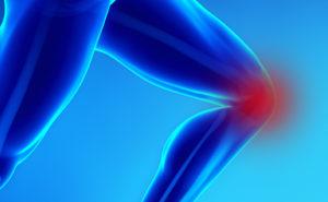Artrosi al ginocchio, no alla protesi grazie alle cellule staminali